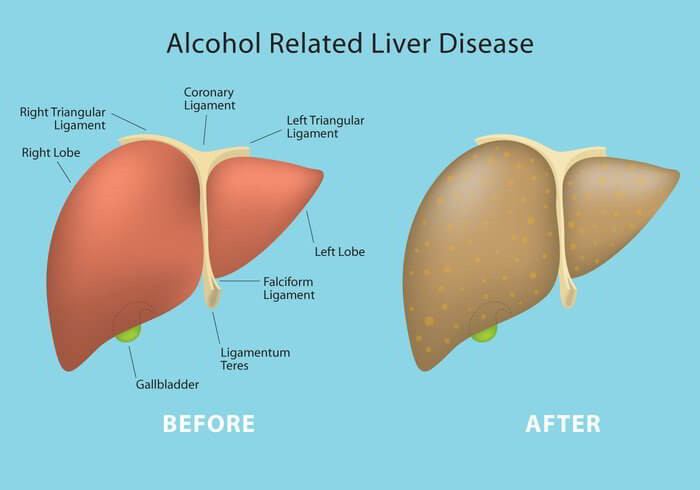 Alcohol Related Liver Disease And Its Symptoms And