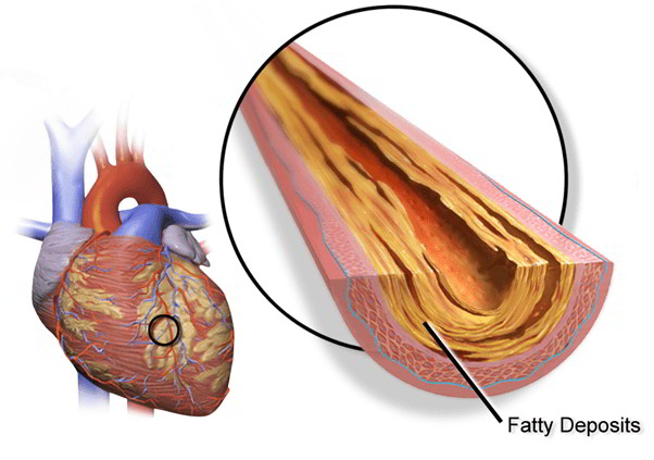 Coronary Artery Heart Disease (CHD) – Risk, Causes, Symptoms