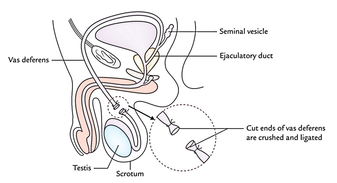Easy Notes On Ejaculatory Deferent Ducts Or Vasa Deferentia