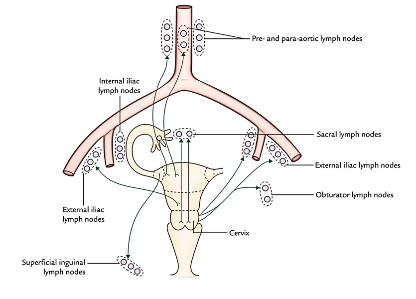 Easy Notes On Uteruslearn In Just 4 Minutes