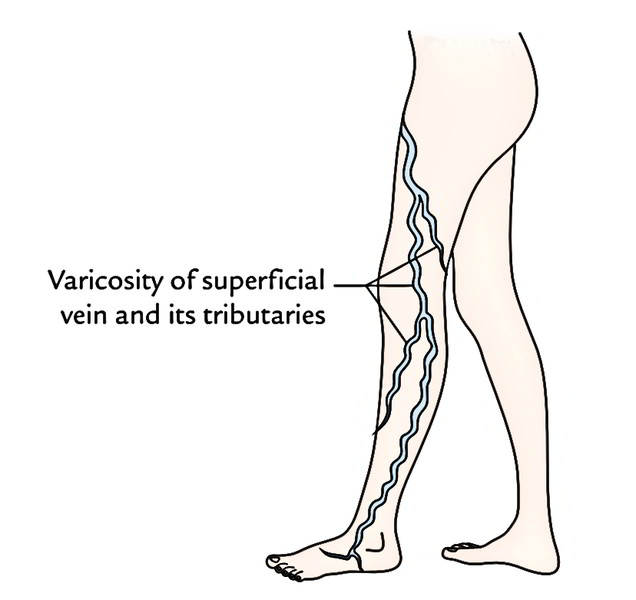 Varicose Veins And Varicose Ulcers Of The Lower Limb Earths Lab