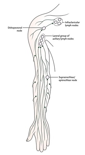 easy notes on  u3010lymphatic drainage of the upper limb