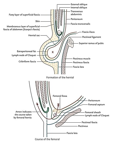 Easy Notes On Femoral Canal Learn In Just 4 Minutes