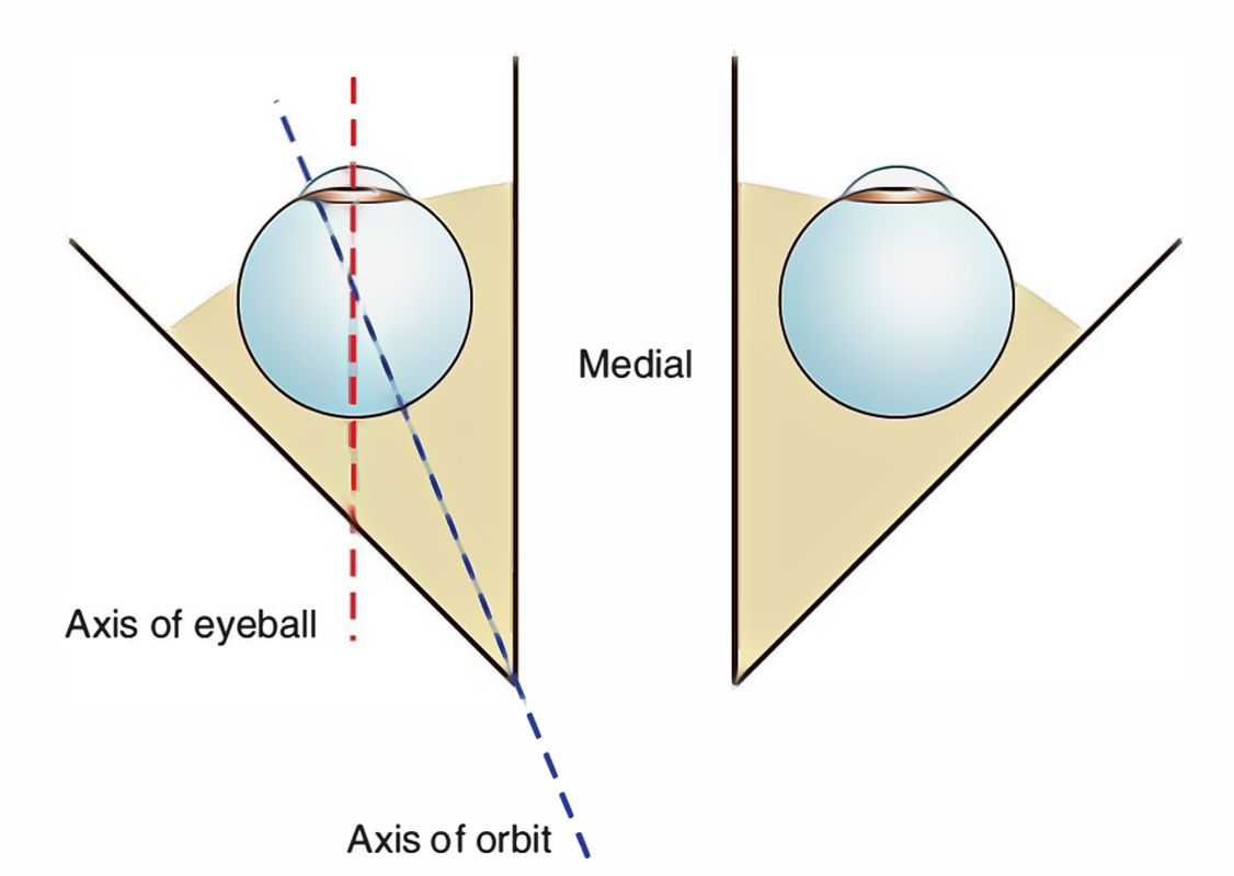 Extraocular Muscles: Axis of Movements
