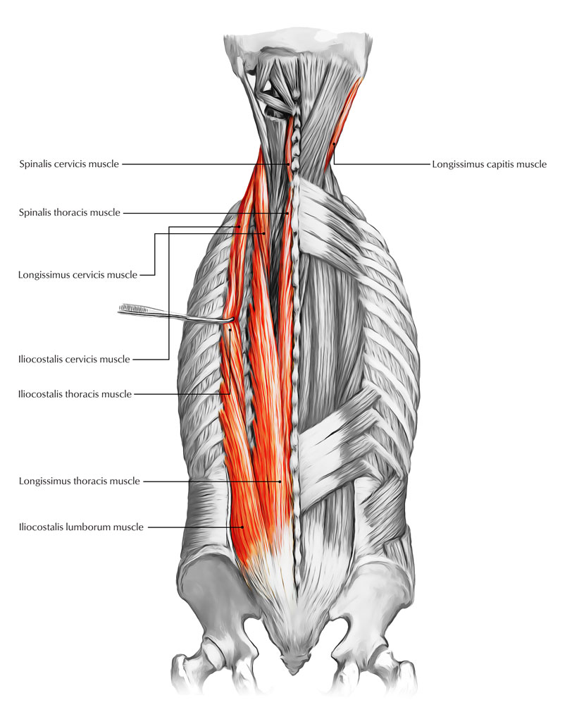 Muscles of the Back: Erector Spinae Muscles
