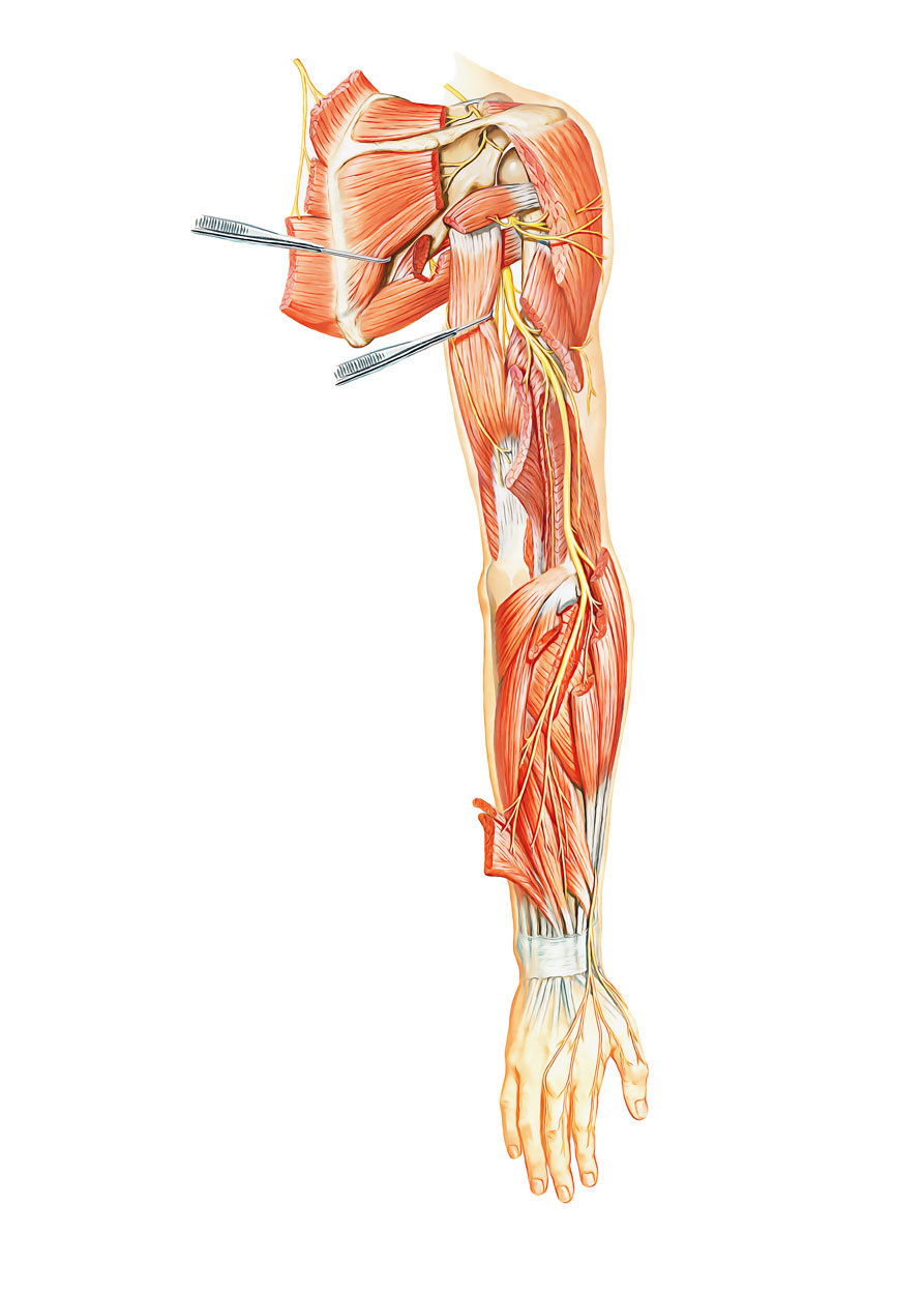 Easy Notes On 【Radial Nerve】Learn in Just 4 Minutes!