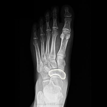 Navicular Tension Fracture