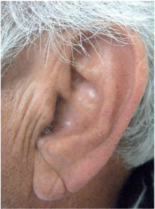 Lobule of Ear - Frank's Sign