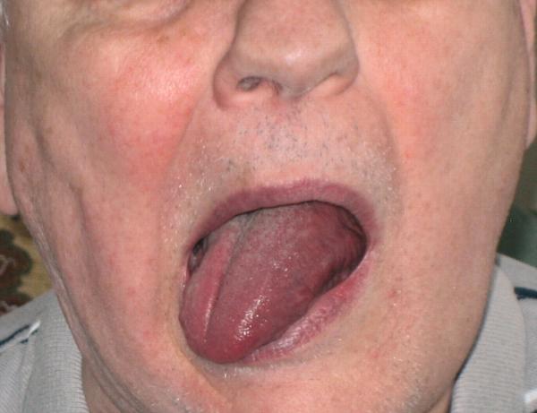 Palsy of Lingual Nerve